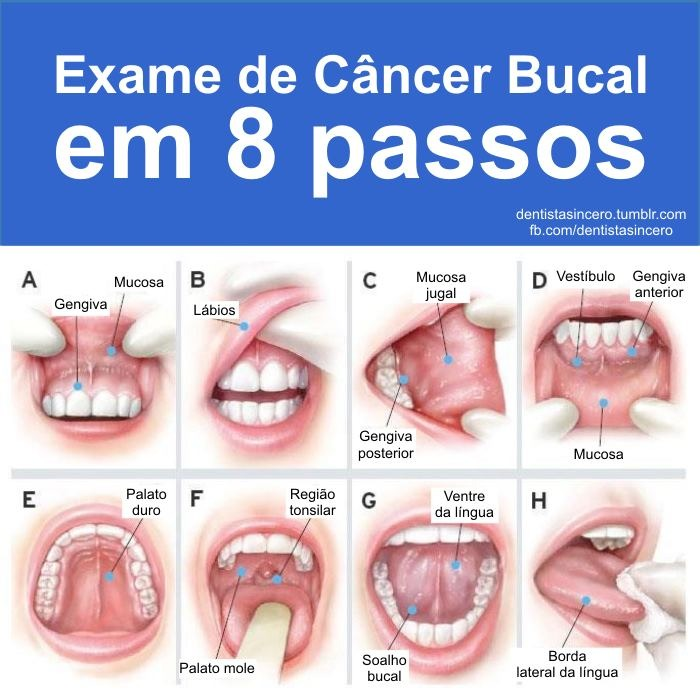 8 passos p exame de cancer bucal